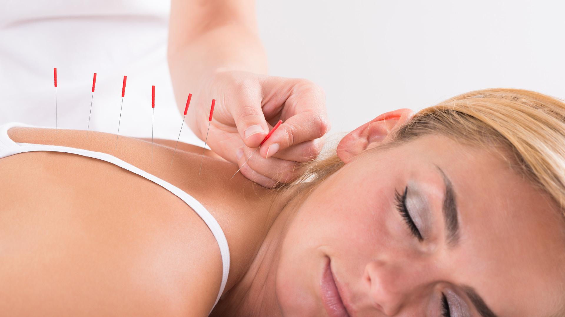L'Agopuntura in Menopausa